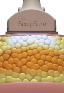 Sculpsure Application